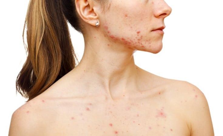 Femme acné alain bernard clinique acupuncture
