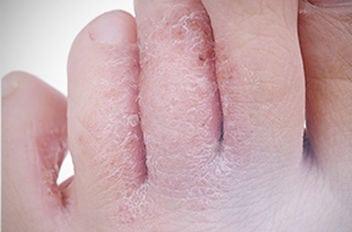 peau des pieds seche