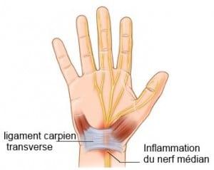 canal-carpien-canal-carpien-anatomie- symptômes- carpien-canal-cause-syndrome-du-canal carpien-canal-carpienne