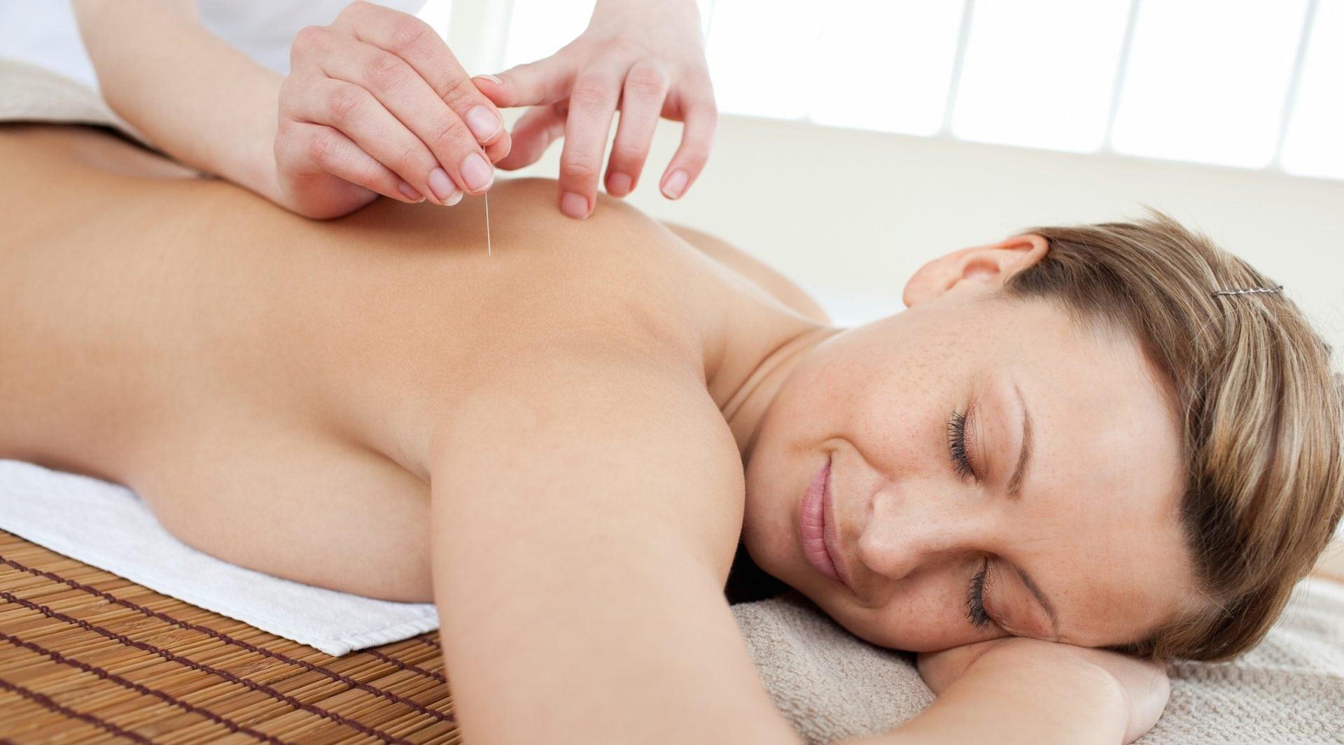 Acupuncture maux tete mal migraine acupuncteur