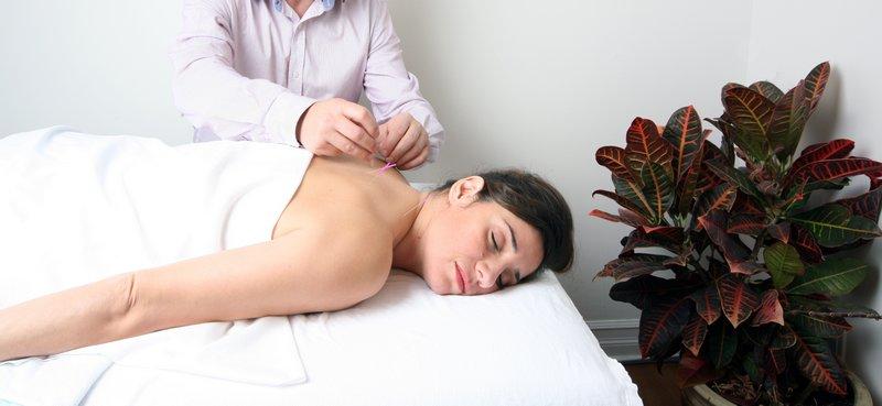 Séance d'acupuncture avec Alain Bernard, acupuncteur